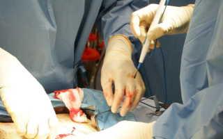 Что такое аденома простаты у мужчин: симптомы и лечение, простатит, ПСА