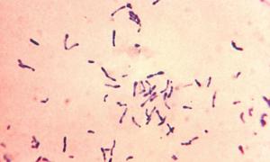 Corynebacterium spp у мужчин и женщин: лечение
