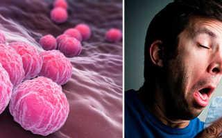 Хламидии трахоматис: у мужчин как вылечить, что делать, как избежать