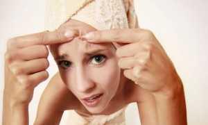 Противозачаточные таблетки против прыщей: какие и как принимать, противопоказания