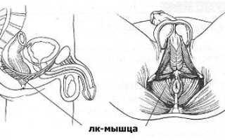 Упражнения Кегеля для мужчин после удаления простаты – простатэктомии, гимнастика