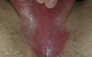 Паховый грибок у мужчин: причины, лечение, профилактика