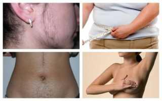 Женская импотенция: причины, симптомы, лечение и профилактика