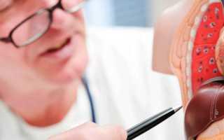 Первые признаки и симптомы гепатита А у мужчин, женщин и детей