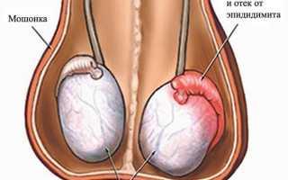 Мочеполовые болезни у мужчин, болезни яичек, инфекции, воспаления