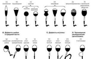 Морфология сперматозоидов: нормальная и патологическая, лечение