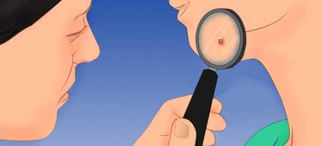 Как выглядит сифилис у женщин, фото, видео, первичный, шанкр