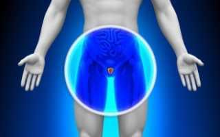 Болезни предстательной железы у мужчин  симптомы, лечение, признаки, диагностика