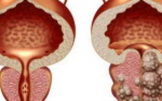 Рак простаты – причины, лечение и профилактика