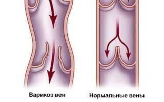 Лопнула вена на половом члене: причины, симптомы, лечение