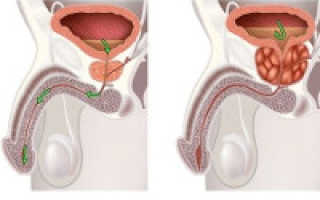 Что такое ДГПЖ и доброкачественная гиперплазия предстательной железы