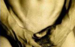 Рубцовый фимоз у мальчиков: симптомы, причины, обрезание