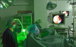 Аденома: операция по удалению простаты ТУР, последствия и как делают