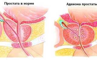 Размер простаты в 60 лет, как снизить размеры аденомы, нормы у мужчин