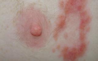 Сифилис: первичный, вторичный, третичный, симптомы, лечение антибиотиками