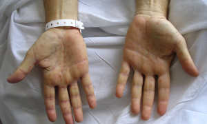 Сифилис на руках: как выглядит папула на ладонях и твердый шанкр, чем лечить, что делать